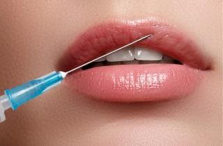 Как ухаживать за губами после гиалуроновой кислоты