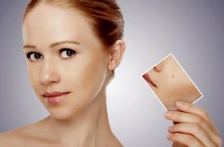 Использование йода для лечения бородавок