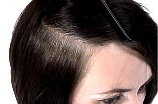 На темных волосах