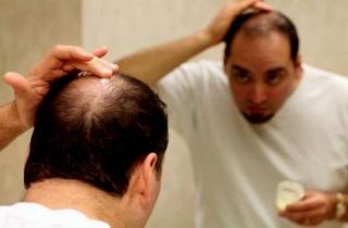 Мазь от выпадения волос