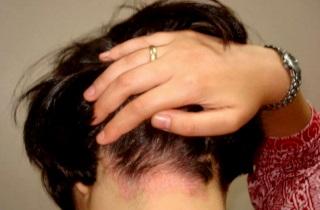 Показания для применения дегтярного мыла для волос