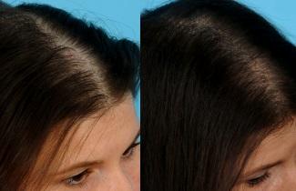 Отзывы о мезотерапии от выпадения волос