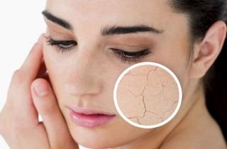 Почему после биоревитализации кожа стала сухой