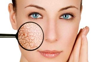После чистки лица шелушится кожа какие крема помогут thumbnail