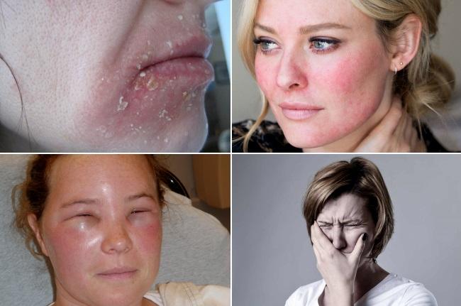 Виды последствий химического пилинга лица
