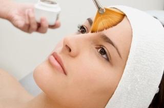 Последствия химического пилинга лица