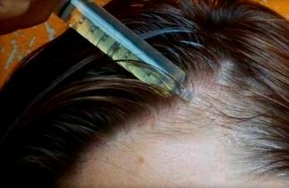 Витамин В2 в ампулах для волос