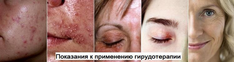 Показания в косметологии для применения гирудотерапии