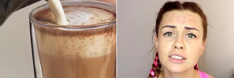 Молоко или сливки, добавляемые в кофе могут вызывать появление прыщей